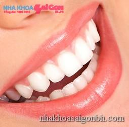 Chỉnh nha để có một hàm răng đẹp đúng chuẩn