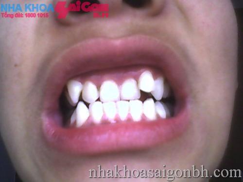 răng mọc hen chúc