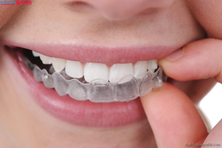 Niềng răng mà bị mòn răng thì có hại gì không