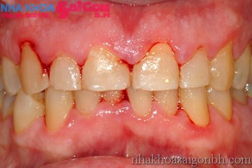 Nguyên nhân và cách chữa trị bệnh chảy máu chân răng