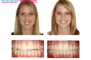 trước và sau khi phẫu thuật chỉnh nha