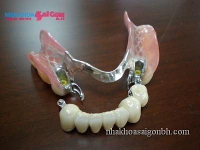 phục hình răng tháo lắp