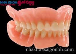 Phục hình răng tháo lắp giải pháp khi mất nhiều răng