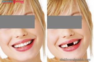 phục hình răng