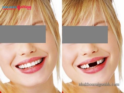 Phục hình răng tái tạo vẻ đẹp của hàm răng