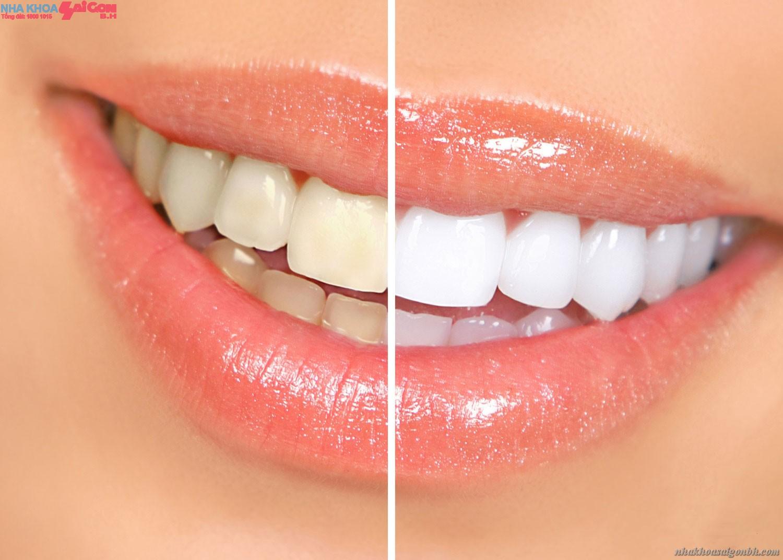 Hình ảnh trước và sau khi tẩy trắng răng