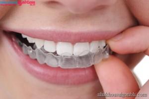 mắc cài răng - yếu tố thẩm mỹ
