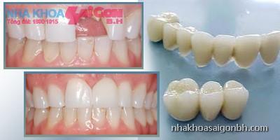 Răng trước và sau khi bọc răng sứ