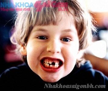 Giúp trẻ tránh bị sâu răng sớm