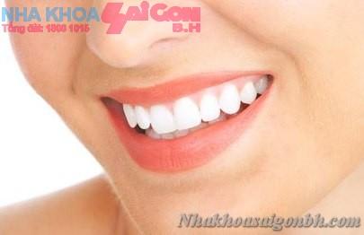 Lấy vôi răng chăm sóc răng miệng