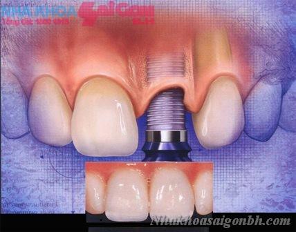 Những điều nên biết trước và sau cấy ghép Implant