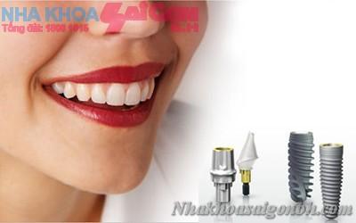 Implant cay ghep
