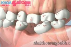 Ảnh hưởng đến các răng còn lại