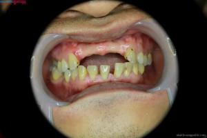 Mất răng