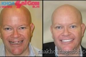 Hình trước và sau khi mất răng