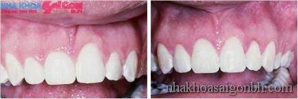 trước và sau khi phẫu thuật nướu