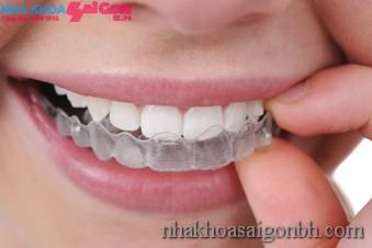 Kỹ thuật niềng răng hô hiệu quả nhất