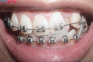 Niềng răng chữa hô, móm bằng mắc cài kim loại