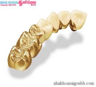 Mão răng bằng vàng