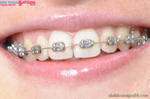 Phương pháp chỉnh nha niềng răng với mắc cài cổ điển