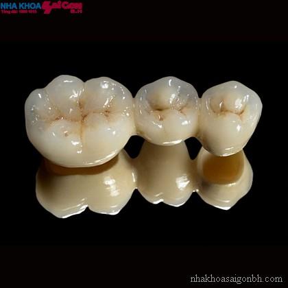 Mão răng toàn sứ