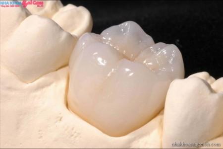 Phương Pháp mão răng