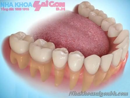 Trồng răng sứ, răng giả giúp phục hồi răng mất