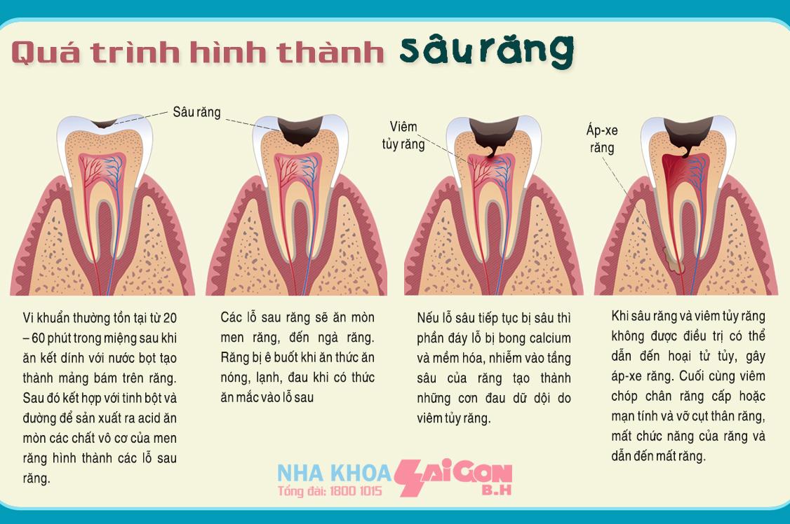 quá trình hình thành và phát triển của sâu răng