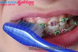 Những lưu ý khi mang niềng răng