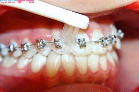 Cách chải răng khi mang niêng