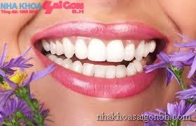 Lựa chọn loại mắc cài niềng răng nào?