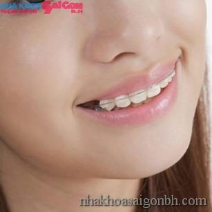 Niềng chỉnh răng tại TPHCM cần lựa chọn Nha Khoa thế nào
