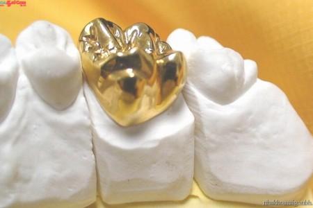 Răng sứ quí kim