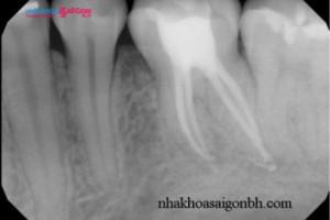 Chụp phim răng