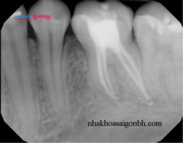 Các bước điều trị tủy răng – nội nha