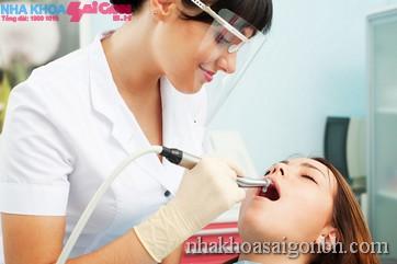 Điều trị tủy răng tại nha khoa