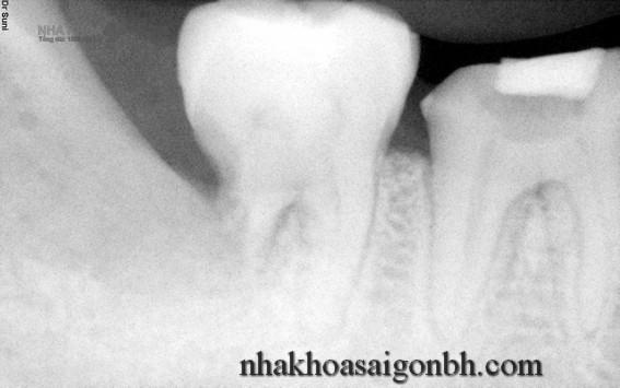 Phân loại các kiểu răng khôn mọc lệch
