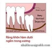 Răng mọc kẹt trong xương hàm