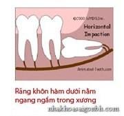 Răng khôn mọc ngang