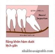 Răng khôn mọc lệch gần