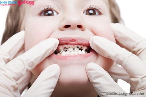 Sâu răng và những biến chứng nguy hiểm