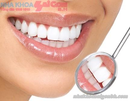 Giá điều trị các dịch vụ trong tẩy trắng răng