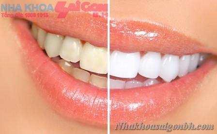 Hiệu quả trước và sau khi tẩy trắng răng