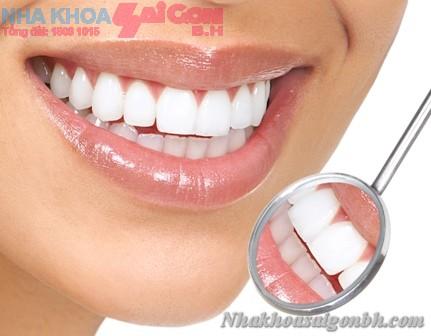 Tẩy trắng răng ở nha khoa nào uy tín nhất biên hòa?