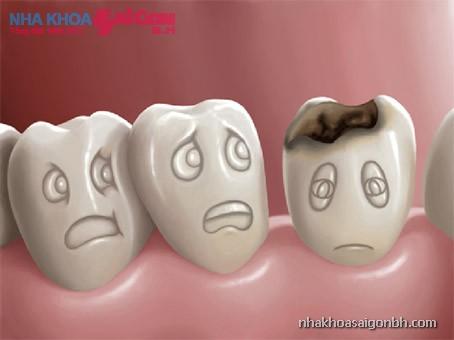 mô hình răng bị sâu