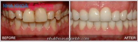 Răng trước và sau khi trám