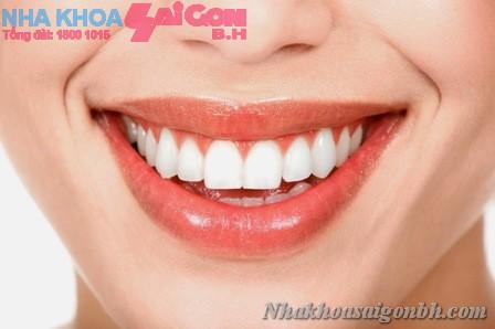 Trám sealant – phương pháp hiệu quả đẩy lùi sâu răng