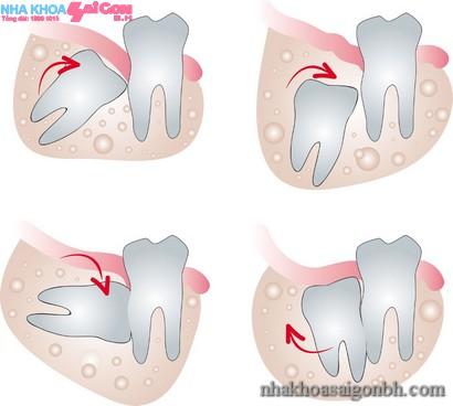 Ảnh hưởng của răng khôn đên răng bên cạnh