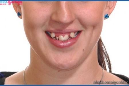 Khi răng khểnh cần được niềng