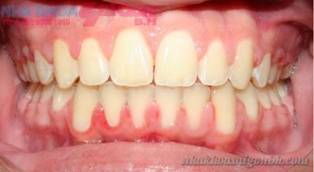Giá điều trị trám răng tại nha khoa